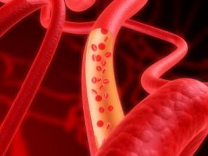 Исследования в Колумбийском университете Медицинского центра показали почему некоторые артериальные бляшки могут оказаться смертельными
