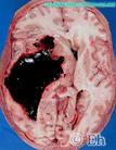 Кровоизлияние в мозг под контролем