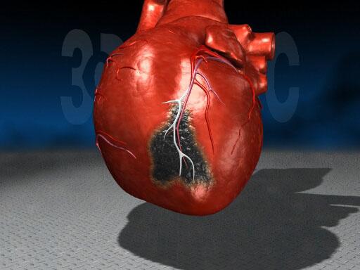 Секс после инфаркта миокарда
