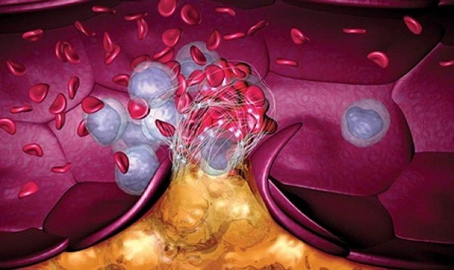 Омепразол и двойная антитромбоцитарная терапия: польза или риск взаимодействия?