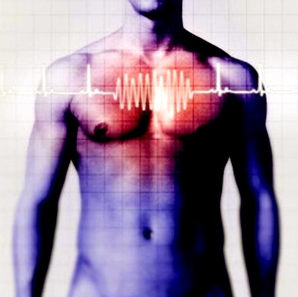 Японские исследователи нашли способ лечить сердечную аритмию при помощи стволовых клеток