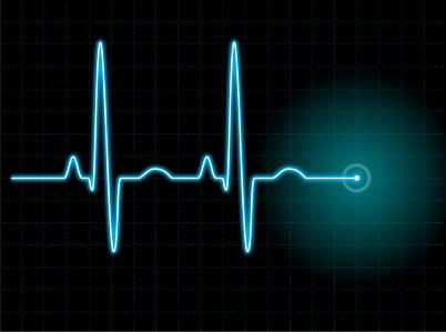 Сердечный ритм и его нарушения