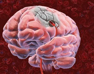Новый препарат может помочь пациентам c аритмией избежать инсульта