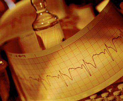Пьянство ведёт к сердечной аритмии