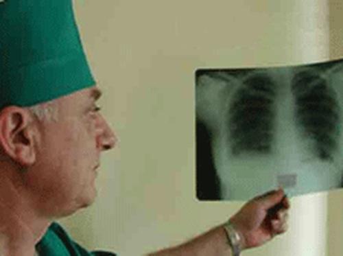 Туберкулез всё более резистентен