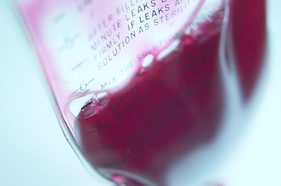 История и развитие трансфузиологии — переливания крови