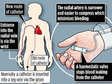 Маленький разрез на запястье спас жизнь мужчине после сердечного приступа