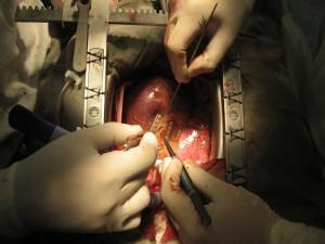 Об оптимальных сроках отмены аспирина перед операцией коронарного шунтирования.