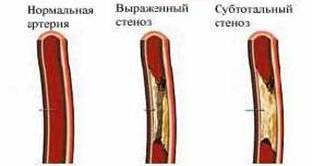 Лечение атеросклироза сосудов