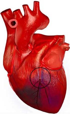 Шведские медики разработали новую методику выявления предрасположенности к инфаркту во время сна