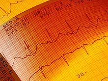 «Прищепка» на палец заменит кардиолога, предсказав болезни сердца