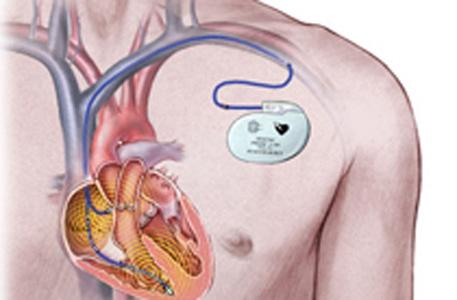 Челнинские медики освоили операции по имплантации электрокардиостимулятора