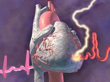Фармакотерапия ишемической болезни сердца: в фокусе цитопротекторы