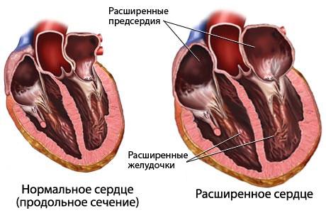 «Дни знаний о сердечной недостаточности» пройдут в Красноярске