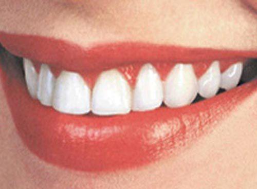 Идеальная улыбка — отбеливание зубов в домашних условиях.