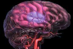 Как защитить себя от инсульта?
