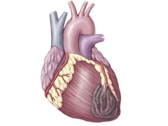 Британцы «разбудили» стволовые клетки для восстановления сердечной мышцы