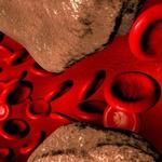 Как влияет холестерин на сердечно-сосудистую систему