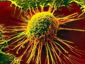 Новая компьютерная методика лечения рака