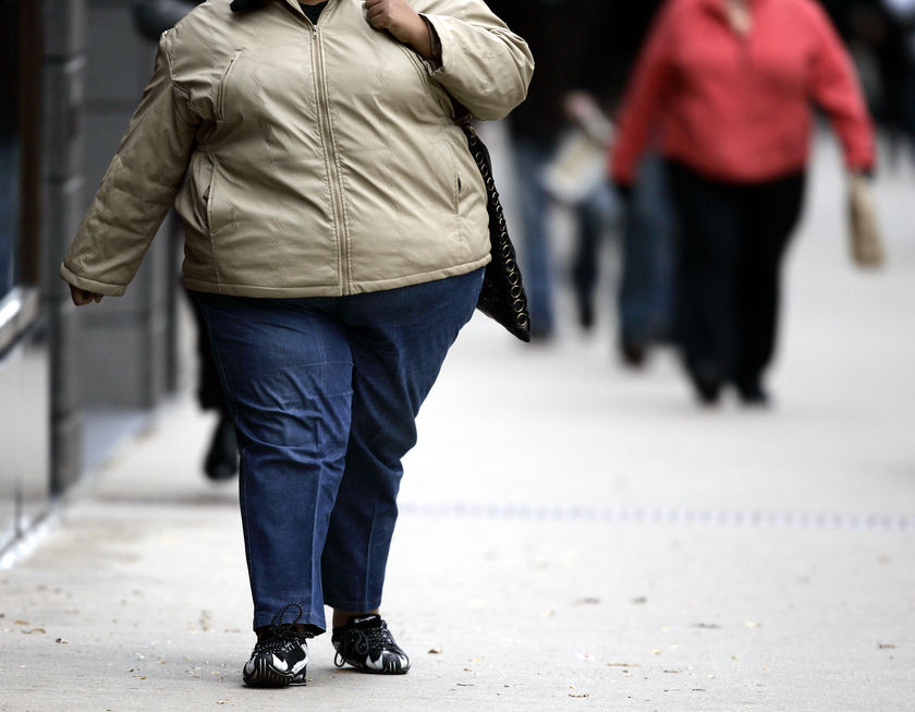 Тяжелое ожирение: не убивайте себя лишними килограммами!