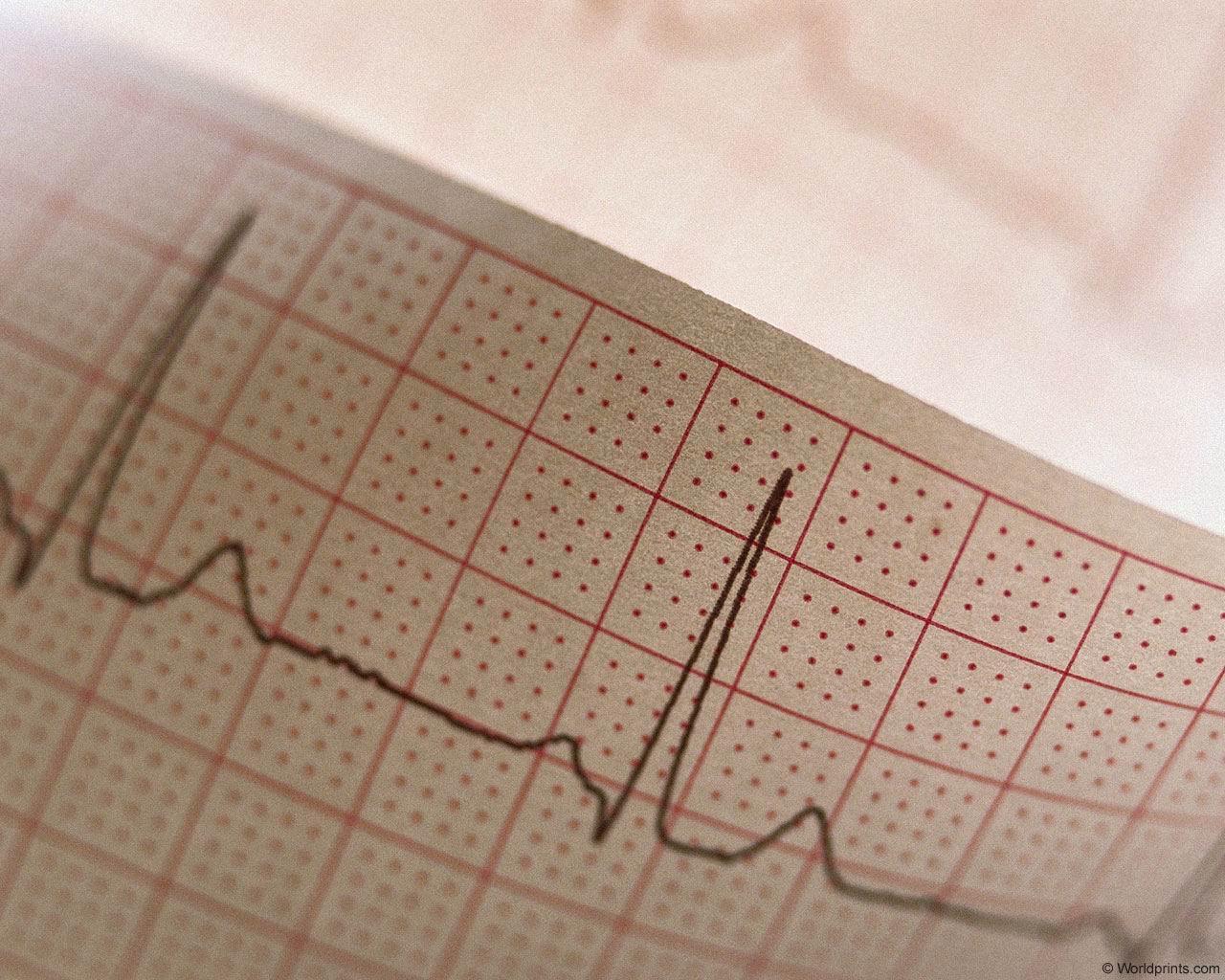 Что показывает ЭКГ (электрокардиограмма)