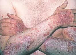 Псориаз – симптом болезни сердца