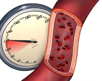Коррекция факторов риска у пациентов с избыточной массой тела, сочетающейся с инсулинорезистентностью и артериальной гипертонией