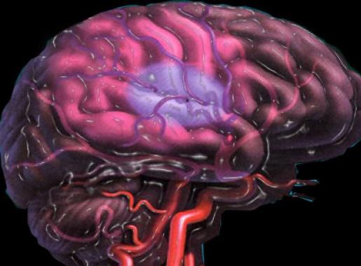 Витамин Е помогает смягчить последствия инсульта
