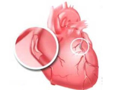 Риску услышать диагноз «стенокардия» подвержен каждый