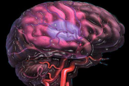 Ученые составили Топ-8 событий, угрожающих инсультом