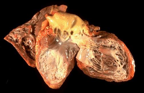 Вовремя заметить угрожающие симптомы — значит предотвратить инфаркт!