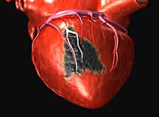 Ученые разработали лекарство от инфаркта и инсульта