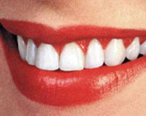 Уход за зубами полезен для здоровья сердца!