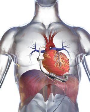 Мифы о сердечно-сосудистых заболеваниях