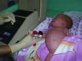 Оксигемометрия позволяет выявить врожденные пороки сердца у новорожденных