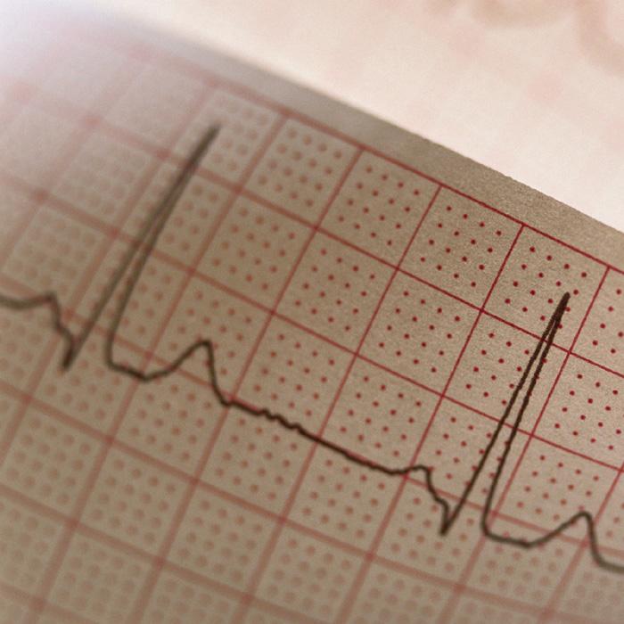 В Благовещенском районе Алтайского края развивают кардиологическую службу