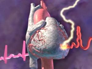 Применение нитратов у больных хронической ишемической болезнью сердца