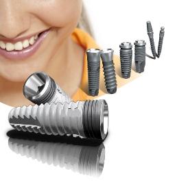Всё что вы хотели знать о имплантации зубов