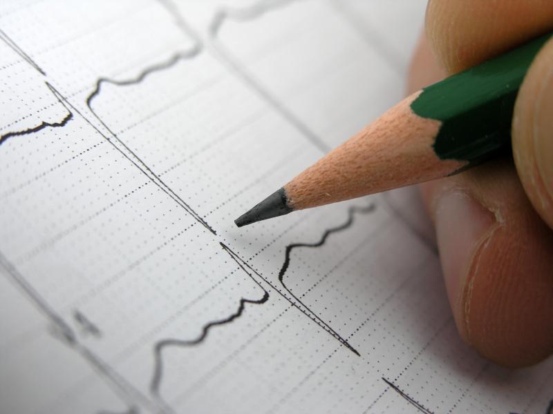 Новый метод лечения сердечной аритмии