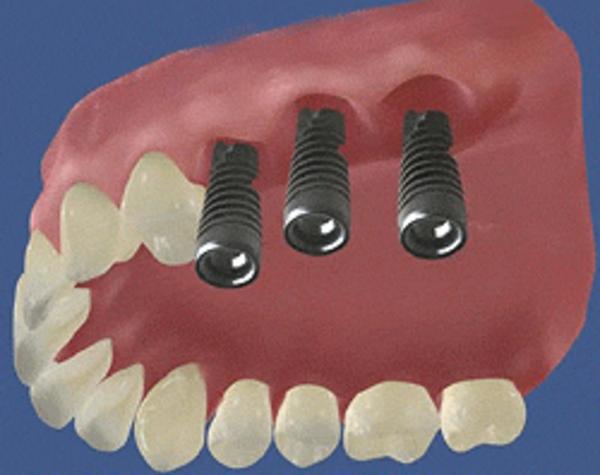 Что такое протезирование зубов на имплантах?