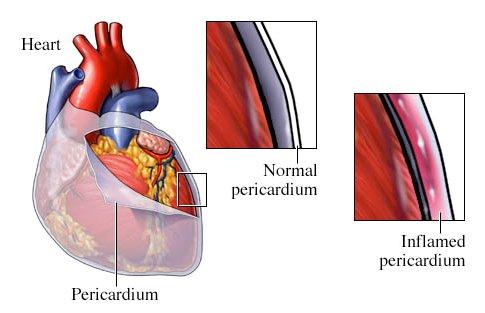 Колхимицин предупреждает рецидивы перикардита