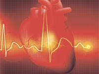 Аритмия повышает риск развития деменции