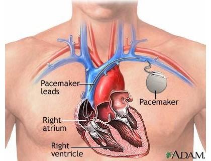 Ученые надеются, что в ближайшем будущем лекарства заменят кардиостимулятор