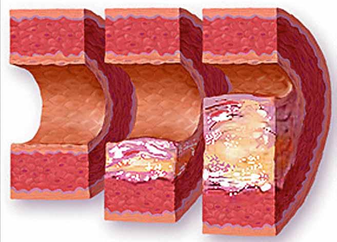 Холестерин – однозначно зло?