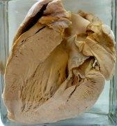 Гипертрофия сердца как генетическое отклонение
