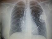 Искусственный водитель сердечного ритма: лазер можно применять для удаления проводов кардиостимулятора у пожилых людей