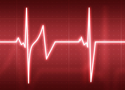 Медленное сердцебиение