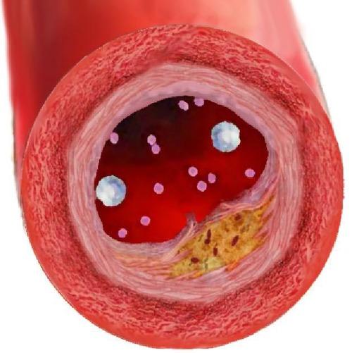 Амниотические стволовые клетки для лечения ишемии