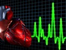 Рейтинг регионов по выпуску препаратов для лечения сердечно-сосудистых заболеваний в 2010 году