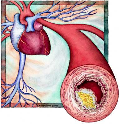 Причины возникновения «плохого» холестерина в крови